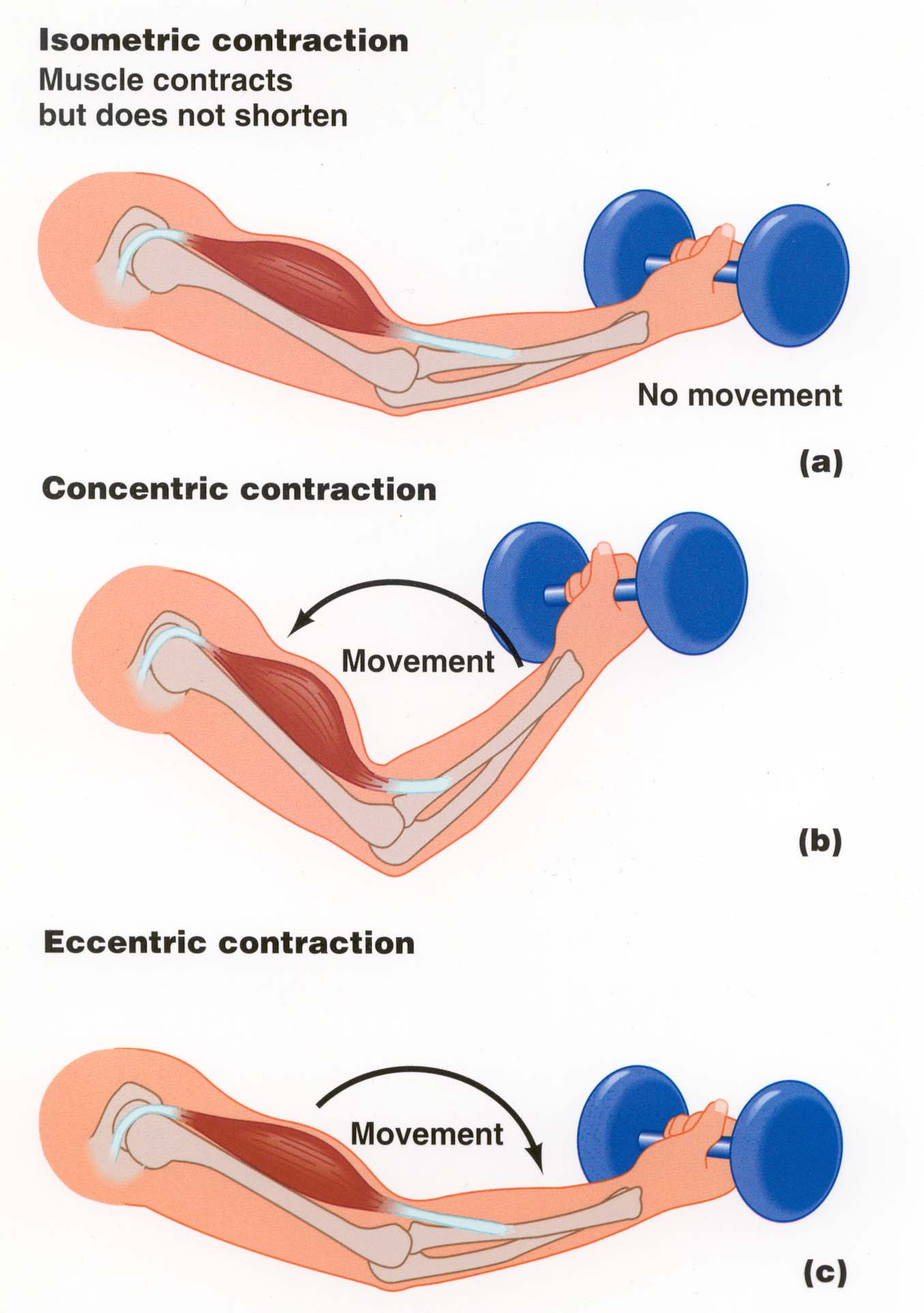 Muscle Actions: Concentric and Eccentric